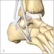 Opération suite à une luxation des tissus fibulaires du pied à Annecy