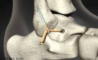 Dr Boniface : Ligamentoplastie de cheville sous arthroscopie: Soirée de formation le 1er Juin 2017