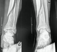 Urgences pied et cheville : chirurgie traumatologique  -> fracture du pilon tibial