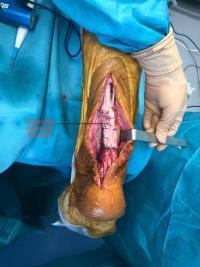 Rupture d'un tendon d'Achille à  3 mois : réparation par transfert tendineux