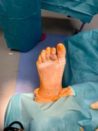 Cas d'une chirurgie d'un avant-pied complexe  : hallux valgus, griffes et métatarsalgies