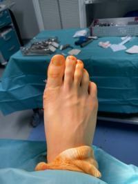 Quelle correction après une chirurgie du pied d'HALLUX VALGUS ?