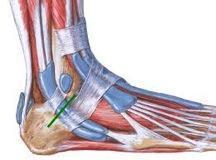 Opération des tendons fibulaires à Annecy