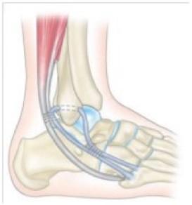 Ligamentoplastie au court fibulaire