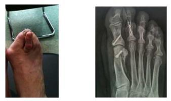 Opération de l'orteil en griffe àAnnecy