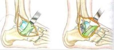Traitement chirurgical de l'instabilité de la cheville à Annecy