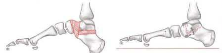 Opération du pied creux valgus à Annecy